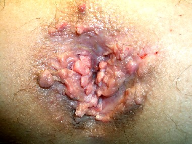 Anal Warts Image - Colon Rectal Diseases