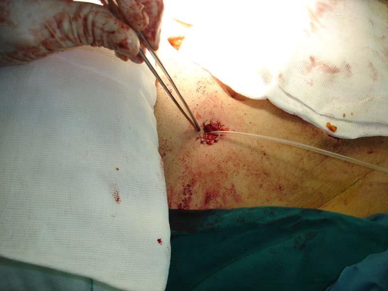 Dr.Rasoul Azizi MD Colorectal Surgeon Web Site ( )